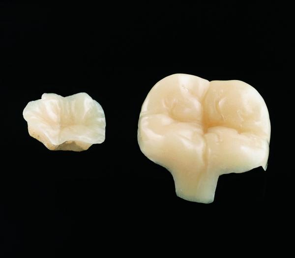 Inlay mehrflächig Celtra-Keramik  individuell