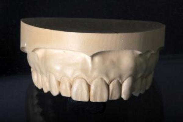 3D-Modell Anschauungsmodelle Ober- und Unterkiefer
