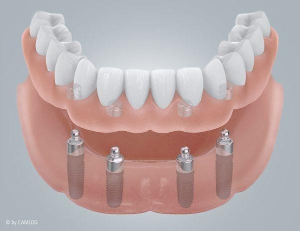 Implantatprothese mit Kugelanker