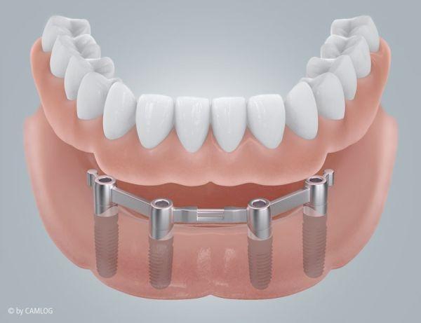 Implantat-Stegarbeit