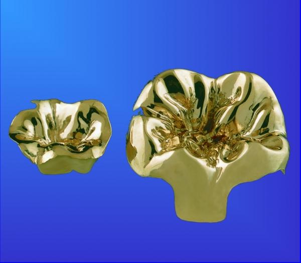 Inlay 1-flächig Gold