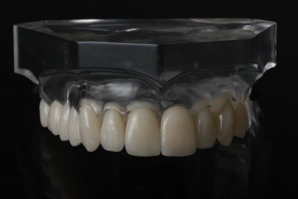 OK-Beratungsmodell transparent Acryl: Veneer mit Inlay LZP gefräst