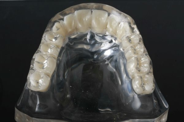 OK-Beratungsmodell transparent Acryl mit einer Aufbissschiene adjustiert
