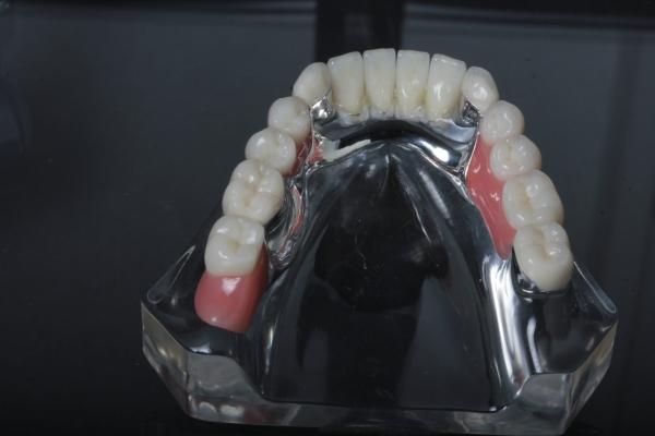 UK-Beratungsmodell transparent Acryl: Modell Teleskoprothese auf 4 Pfeilerzähnen