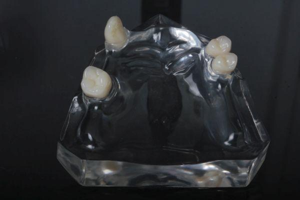 OK-Beratungsmodell Acryl transparent ohne zahntechnische Arbeit für: Modellgussprothese mit Doppelarmklammern auf 4 Zähnen